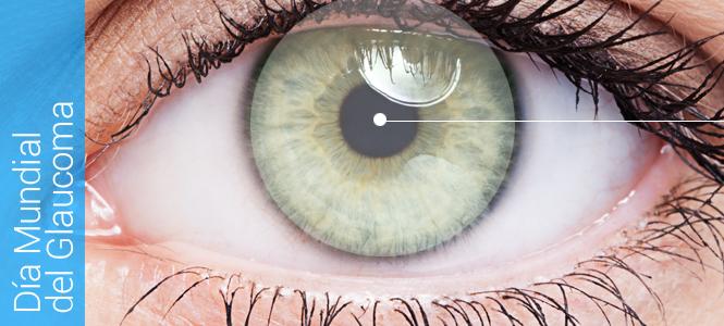 Terapias con células madre para tratar el glaucoma
