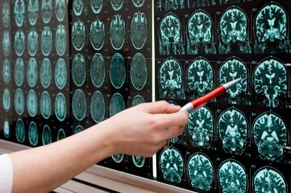 Terapias con células madre para tratar la lesión cerebrovascular