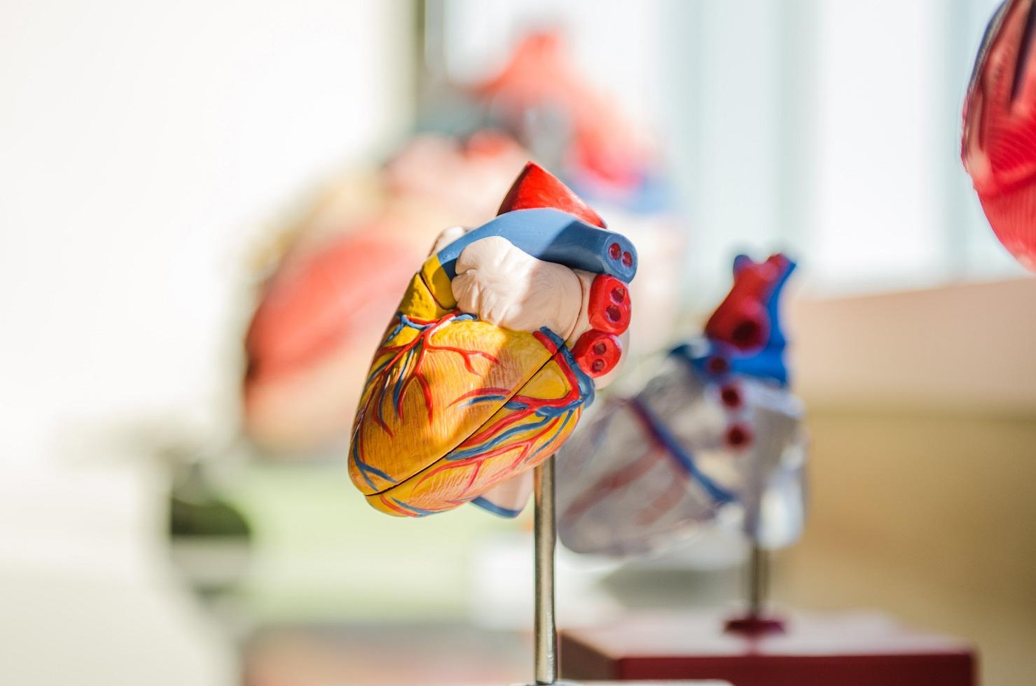 Terapias con células madre en enfermedades cardiovasculares
